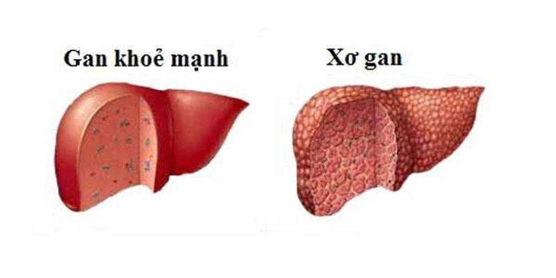 Bệnh xơ gan